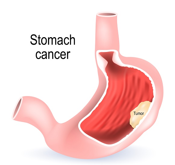 what is gastric cancer